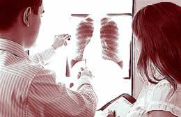 longen-verbeterd